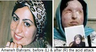 honor killing Ameneh-Bahrami-Iran-acid-attack-victim