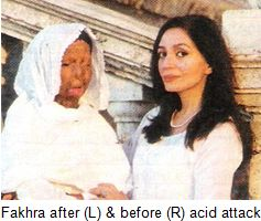Fakhra-acid-attack-victim-pakistan